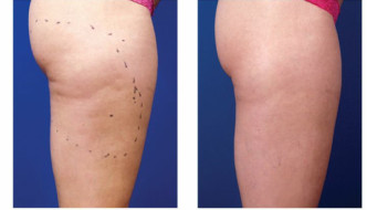 {Beauty} SO LONG CELLULITE! The Venus Freeze Sculpture Treatment with Clare Peters at Neville